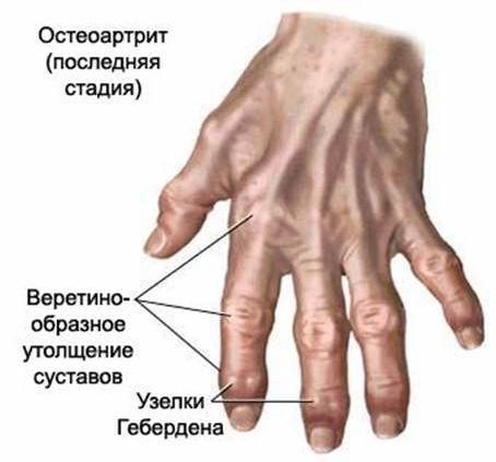 58362191_artrit12