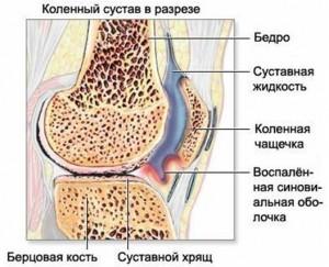 artroz12